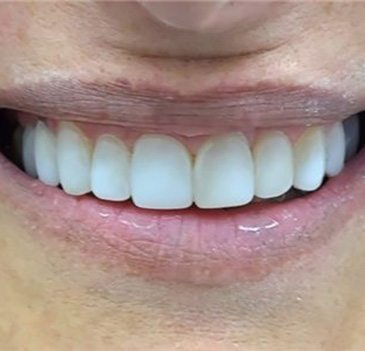 Dental smile lift gallery